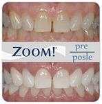 отбеливание зубов по технологии ZOOM
